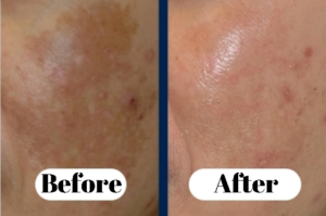 Treatment of melasma with hydroquinone