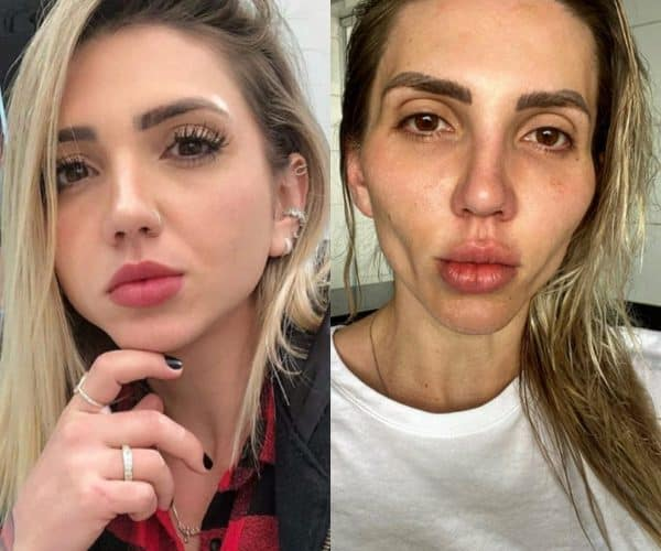 Who Is Jéssica Frozza, TikTok Influencer Who Disfigured Her Face After Undergoing A Bichectomy.