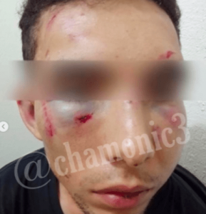 Remmy Valenzuela attack his Cousin And His Girlfriend